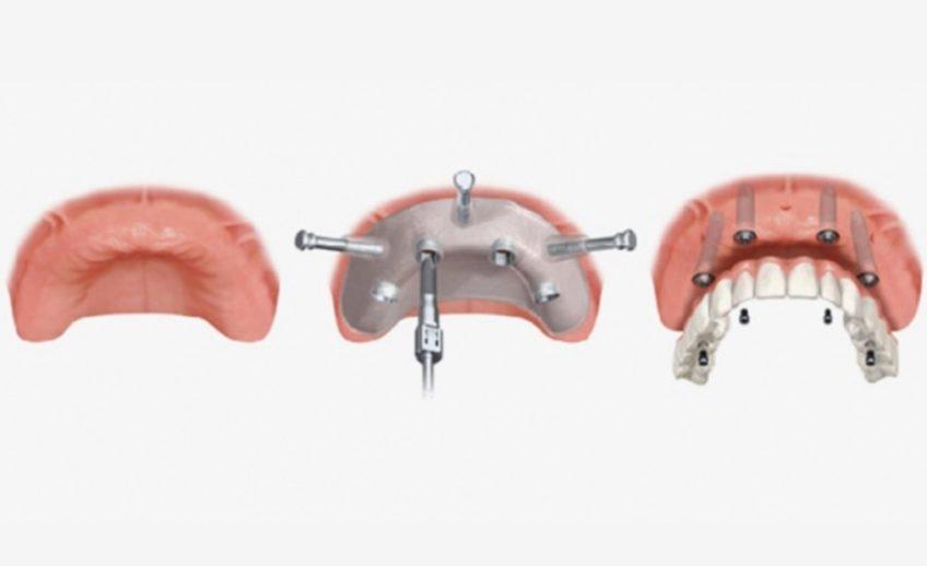 chirurgia_odontoiatrica_guidata