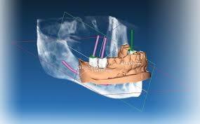 implantologia guidata 3