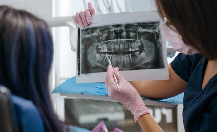 Ricostruzione dente